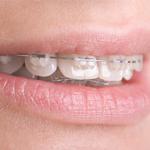 Ortodontie Timisara